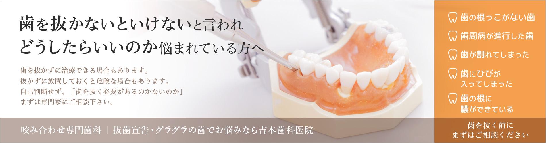 香川県の抜歯しない治療法・歯を削らない治療法なら吉本歯科医院
