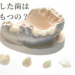 治療した歯の寿命は何年か知っていますか?