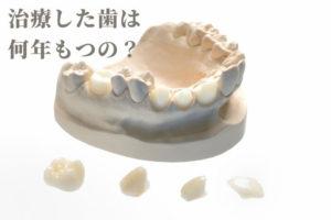 歯の治療の寿命